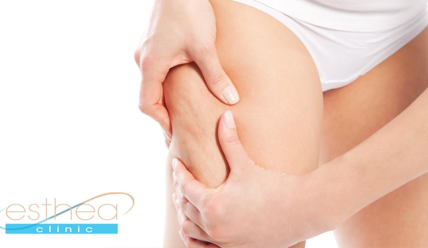 Tout ce que vous souhaitez savoir sur la liposuccion