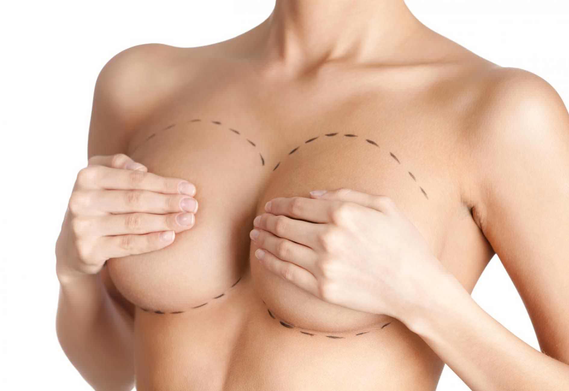 Implant Mammaire